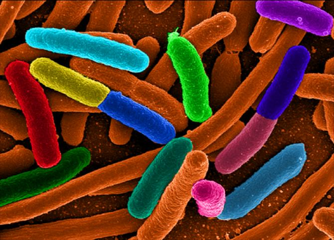 Vi khuẩn Ecoli